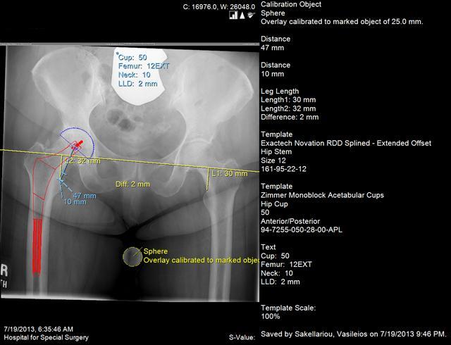 Αρθρίτιδα Ισχίου: Χειρουργική Αντιμετώπιση με τις Τεχνικές AMIS / ASI