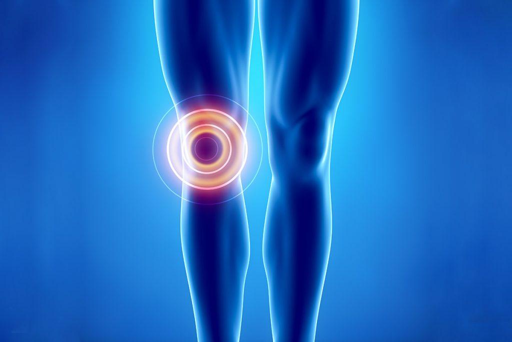 Αρθροπλαστική Γόνατος - Αρθρίτιδα