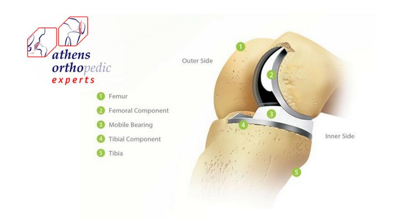 Μοντέρνα εναλλακτική λύση στην αρθροπλαστική του γόνατος
